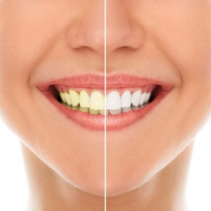 5 Best Teeth Whitening Method in Redwood City