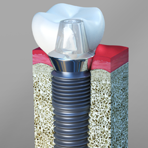 Dental Implants Redwood City, CA