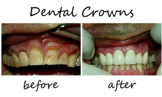 Dental Crowns 1