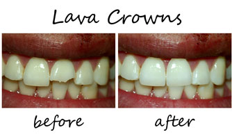 Lava Crowns 1