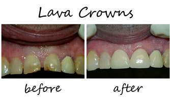 Lava Crowns 2